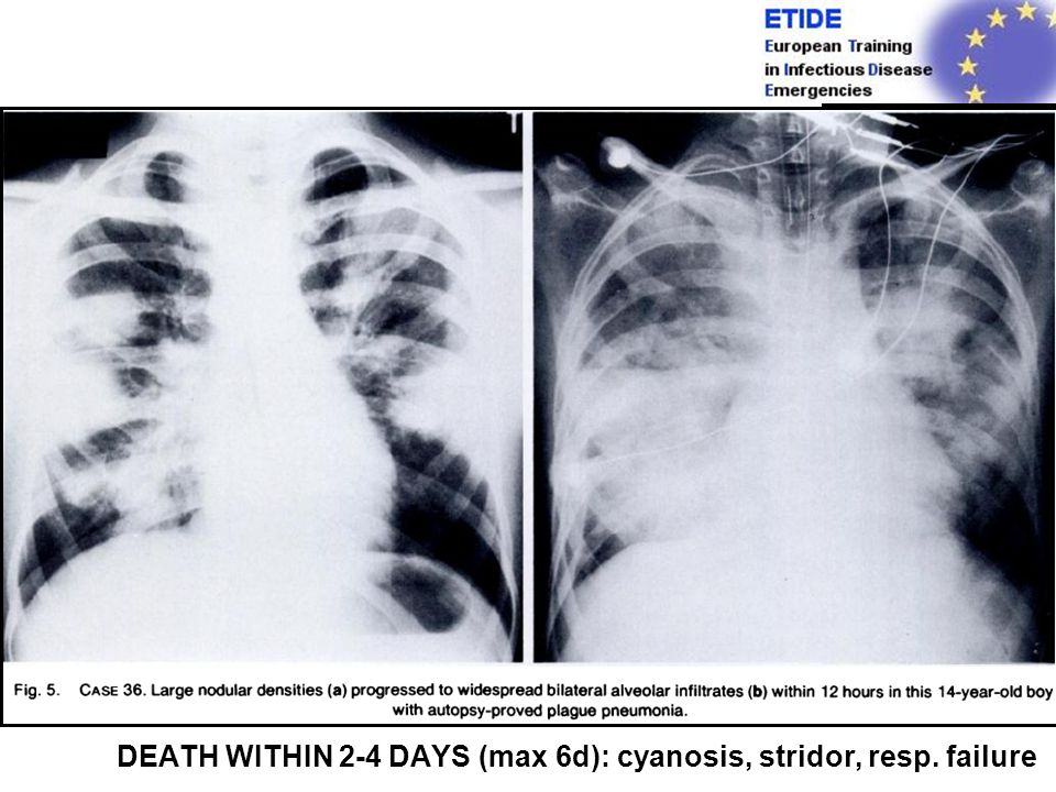 3. Pneumonic Plague US cases:2%PRIMARY PNEUMONIC 12% SECONDARY PNEUMONIC PRIMARY: Result of droplet inhalation Only few cases in endemic areas ENTRY: