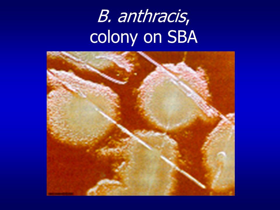 B. anthracis, colony on SBA