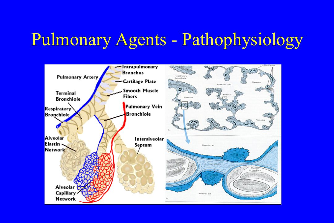 Pulmonary Agents - Pathophysiology