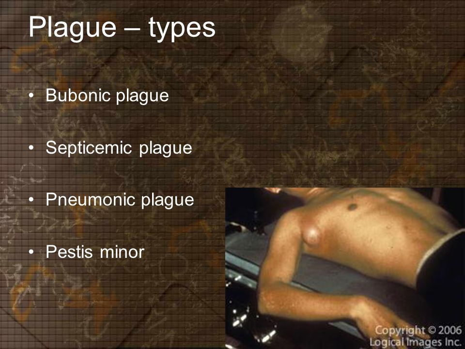 Plague – types Bubonic plague Septicemic plague Pneumonic plague Pestis minor