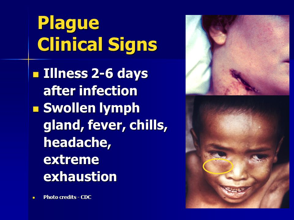 Plague Clinical Signs Illness 2-6 days after infection Illness 2-6 days after infection Swollen lymph gland, fever, chills, headache, extreme exhaustion Swollen lymph gland, fever, chills, headache, extreme exhaustion Photo credits - CDC Photo credits - CDC