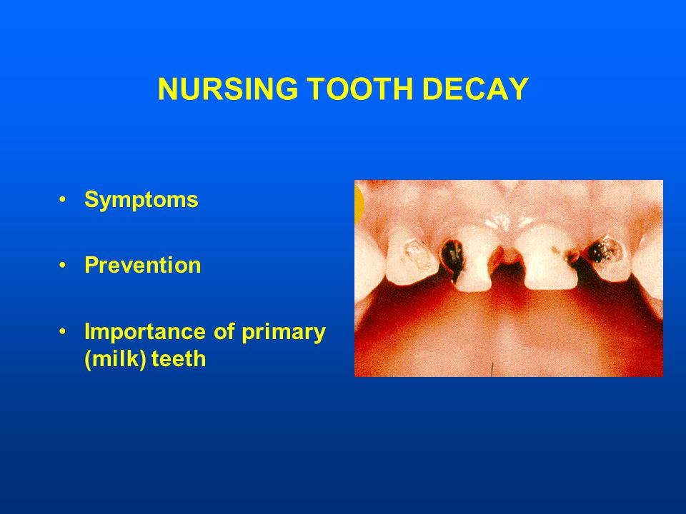 NURSING TOOTH DECAY Symptoms Prevention Importance of primary (milk) teeth