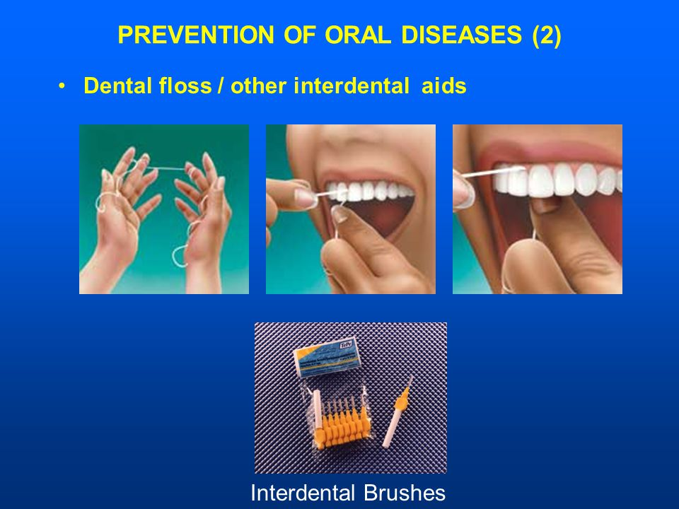PREVENTION OF ORAL DISEASES (2) Dental floss / other interdental aids Interdental Brushes