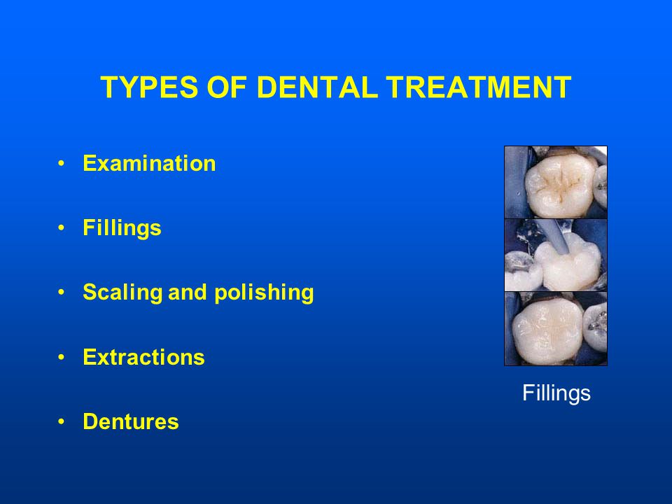 TYPES OF DENTAL TREATMENT Examination Fillings Scaling and polishing Extractions Dentures Fillings