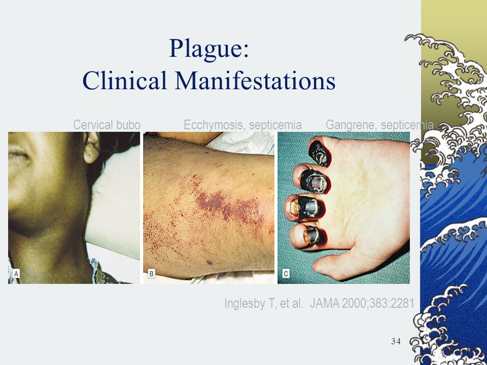 Plague: Clinical Manifestations Cervical buboEcchymosis, septicemiaGangrene, septicemia Inglesby T, et al. JAMA 2000;383:2281 34