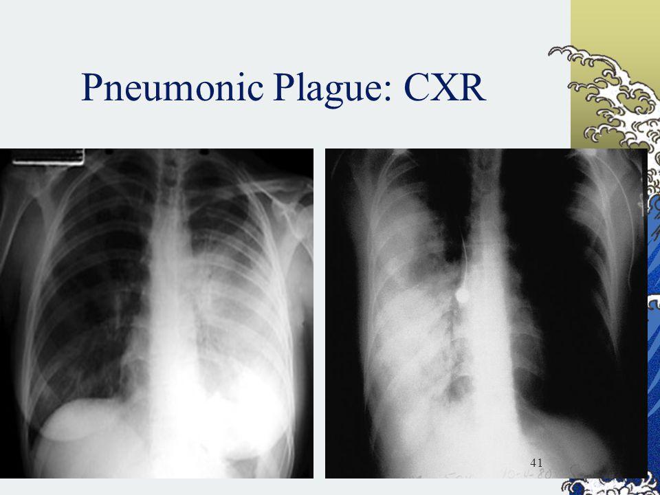 Pneumonic Plague: CXR 41