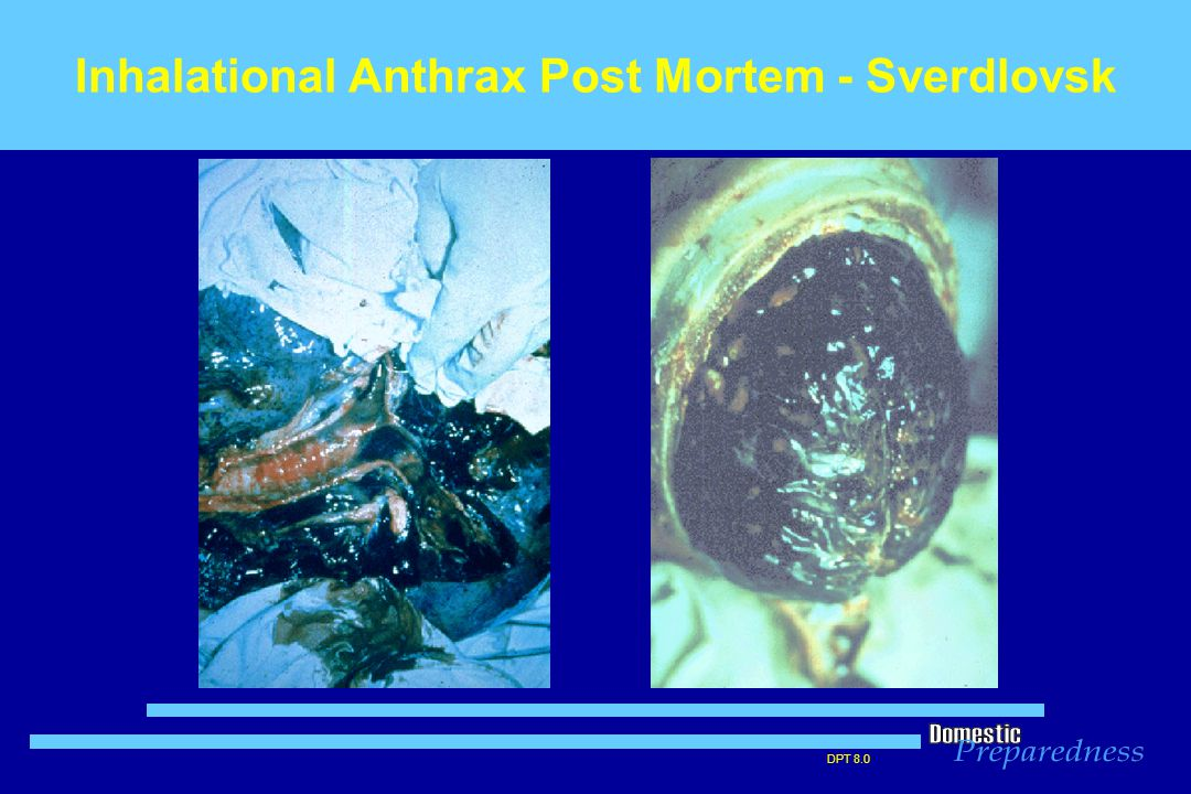 DPT 8.0 Inhalational Anthrax Post Mortem - Sverdlovsk