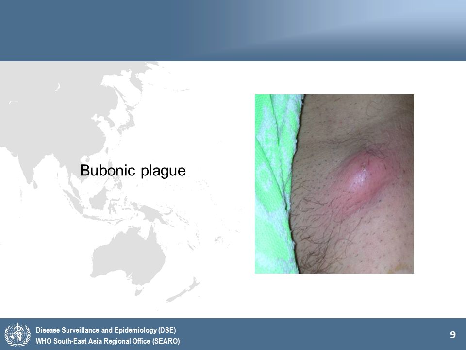 9 Disease Surveillance and Epidemiology (DSE) WHO South-East Asia Regional Office (SEARO) Bubonic plague