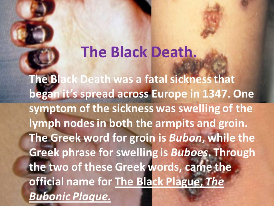The Black Death. The Black Death was a fatal sickness that began it's spread across Europe in 1347. One symptom of the sickness was swelling of the ly