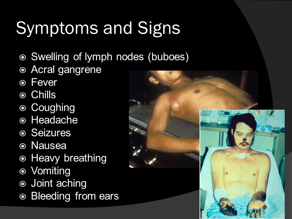 Symptoms and Signs  Swelling of lymph nodes (buboes)  Acral gangrene  Fever  Chills  Coughing  Headache  Seizures  Nausea  Heavy breathing  Vomiting  Joint aching  Bleeding from ears