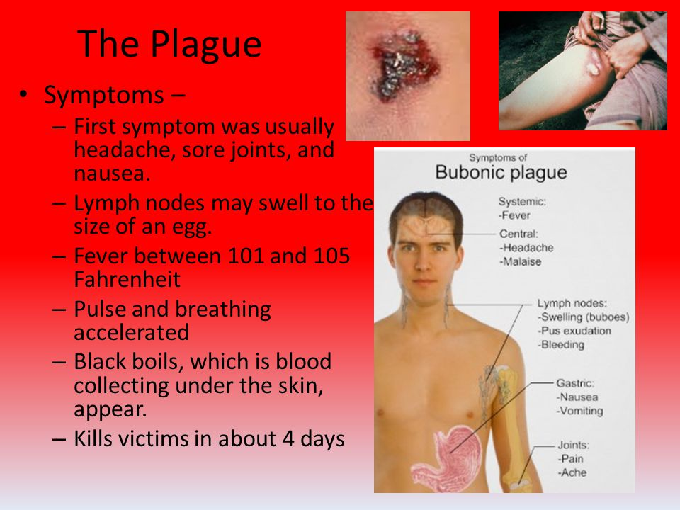 The Plague Symptoms – – First symptom was usually headache, sore joints, and nausea.