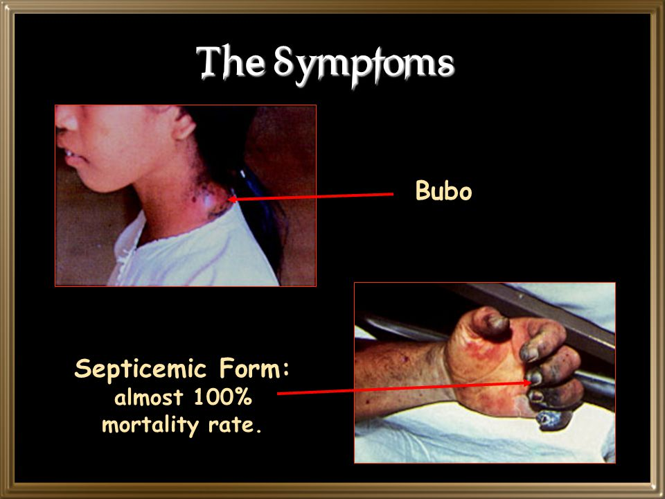 The Symptoms Bubo Septicemic Form: almost 100% mortality rate.