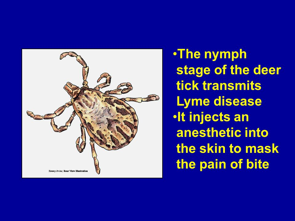 The nymph stage of the deer tick transmits Lyme disease It injects an anesthetic into the skin to mask the pain of bite