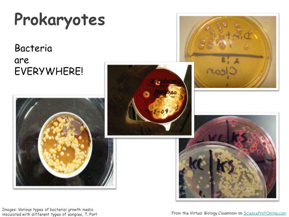 Prokaryotes Bacteria are EVERYWHERE.