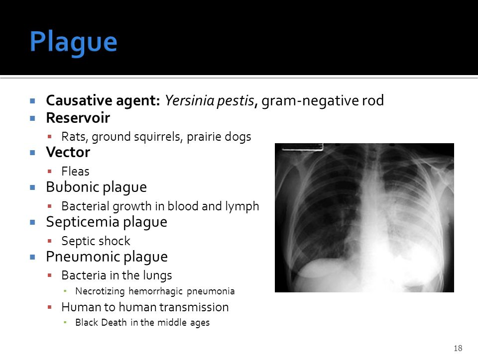  Causative agent: Yersinia pestis, gram-negative rod  Reservoir  Rats, ground squirrels, prairie dogs  Vector  Fleas  Bubonic plague  Bacterial growth in blood and lymph  Septicemia plague  Septic shock  Pneumonic plague  Bacteria in the lungs ▪ Necrotizing hemorrhagic pneumonia  Human to human transmission ▪ Black Death in the middle ages 18