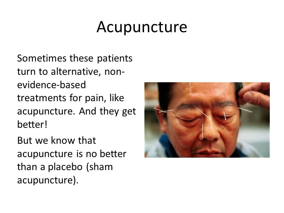 Acupuncture Sometimes these patients turn to alternative, non- evidence-based treatments for pain, like acupuncture.