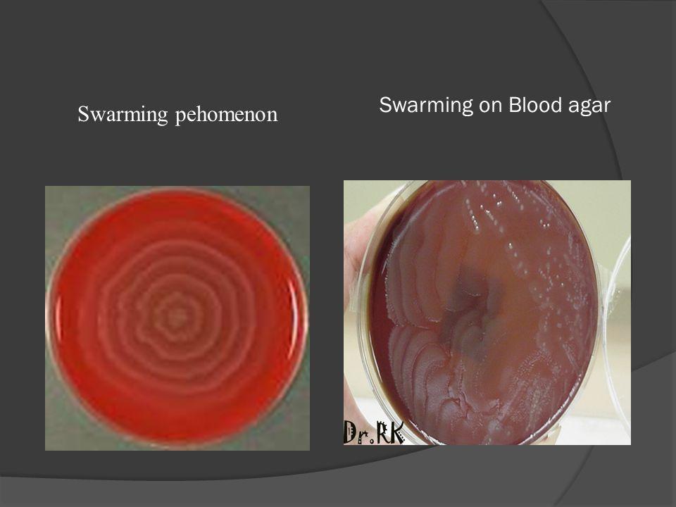Swarming on Blood agar Swarming pehomenon