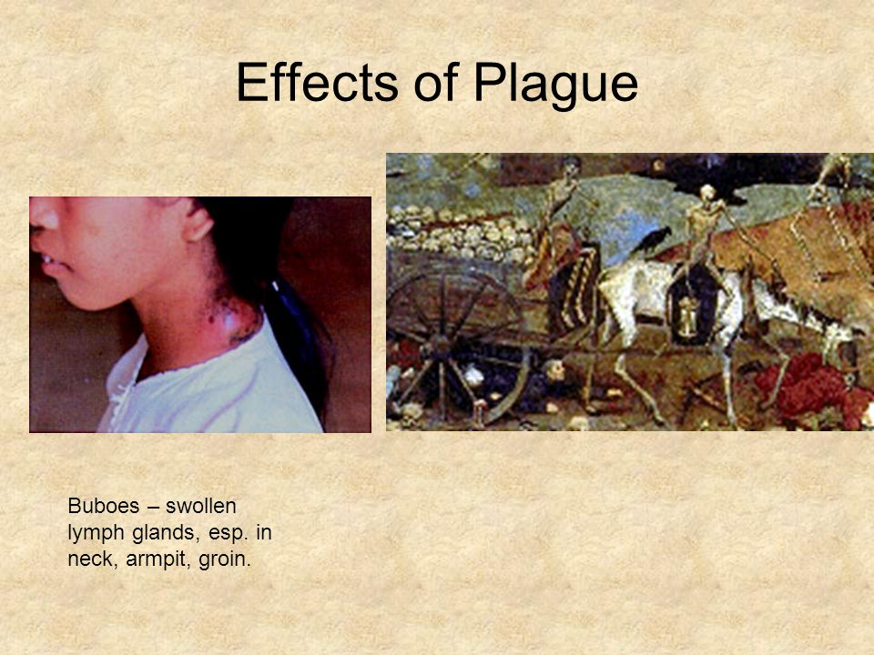 Effects of Plague Buboes – swollen lymph glands, esp. in neck, armpit, groin.