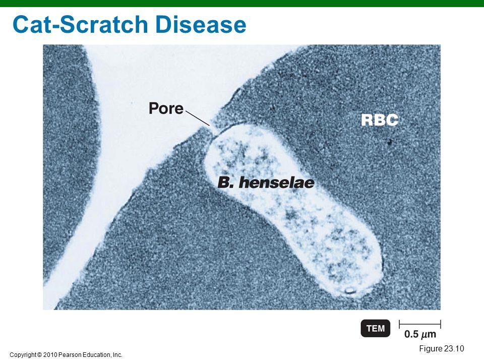 Copyright © 2010 Pearson Education, Inc. Figure 23.10 Cat-Scratch Disease