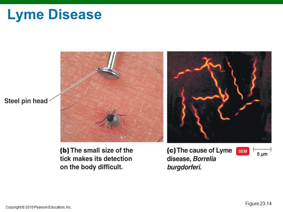 Copyright © 2010 Pearson Education, Inc. Figure 23.14 Lyme Disease