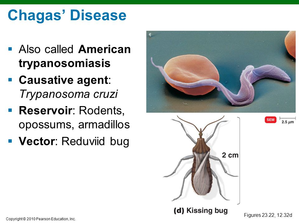 Copyright © 2010 Pearson Education, Inc. Figures 23.22, 12.32d Chagas' Disease  Also called American trypanosomiasis  Causative agent: Trypanosoma c