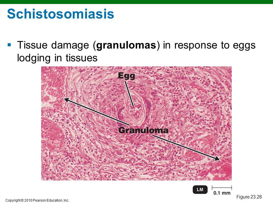 Copyright © 2010 Pearson Education, Inc. Figure 23.28 Schistosomiasis  Tissue damage (granulomas) in response to eggs lodging in tissues