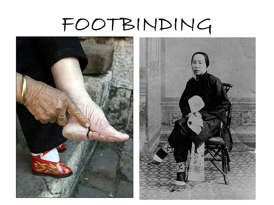 FOOTBINDING