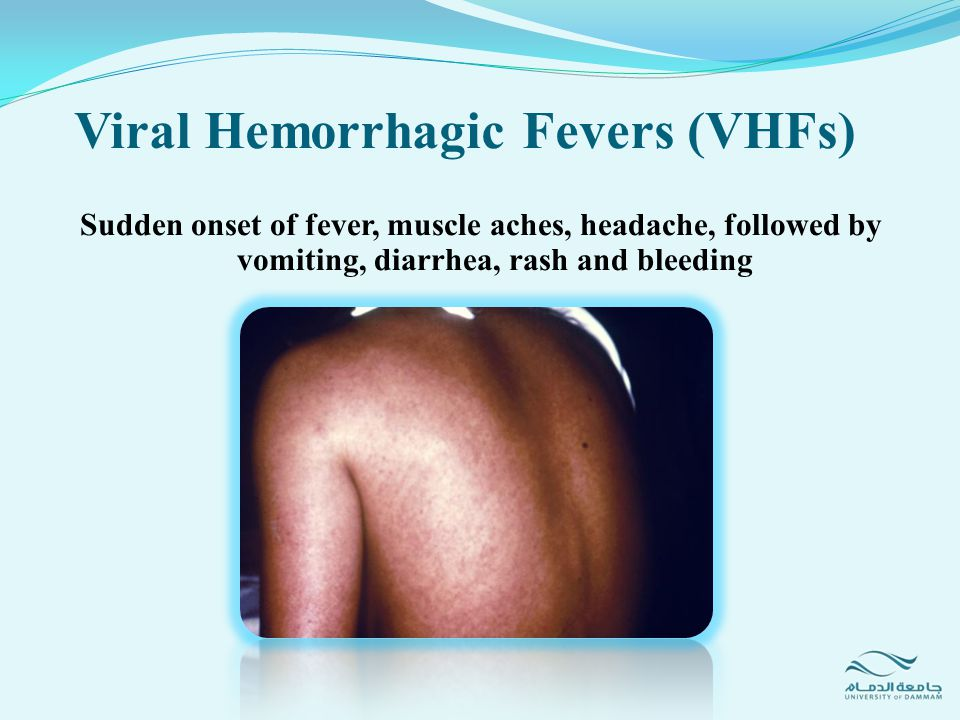 Progresses rapidly to hypotension, shock, mucosal and GI bleeding, edema and end-organ failure Viral Hemorrhagic Fevers (VHFs)