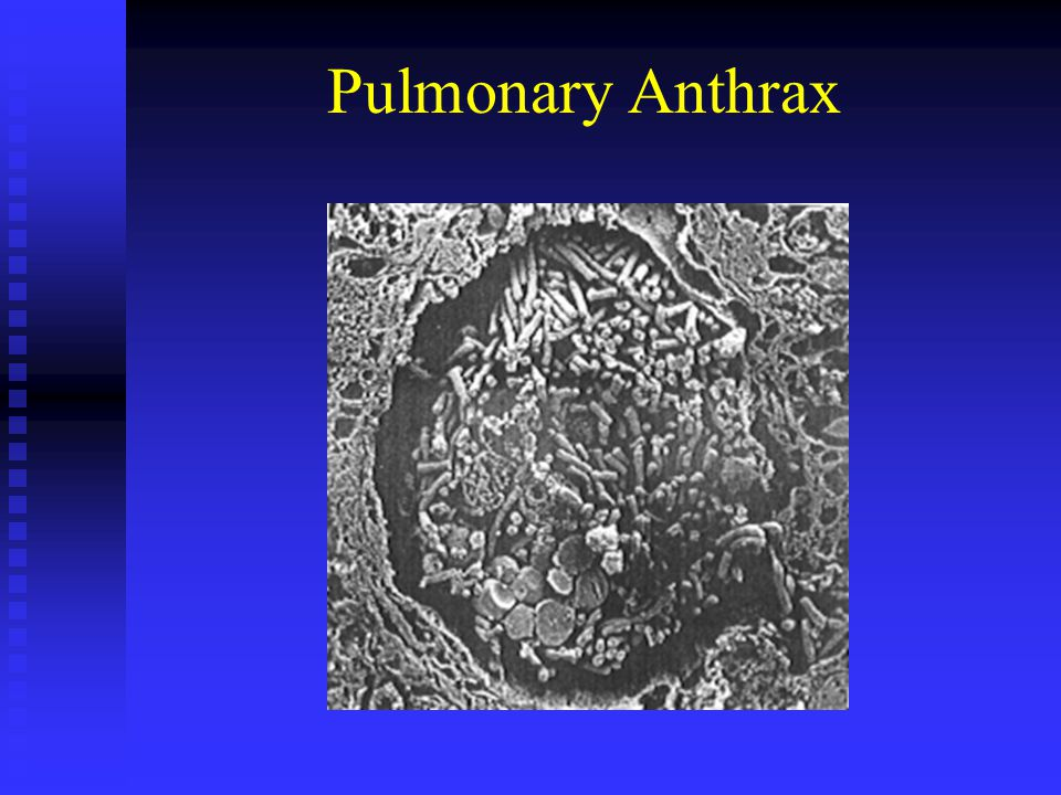 Pulmonary Anthrax
