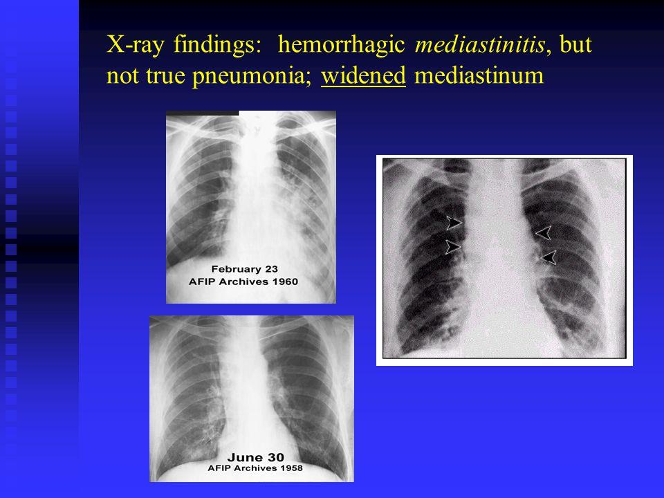 X-ray findings: hemorrhagic mediastinitis, but not true pneumonia; widened mediastinum