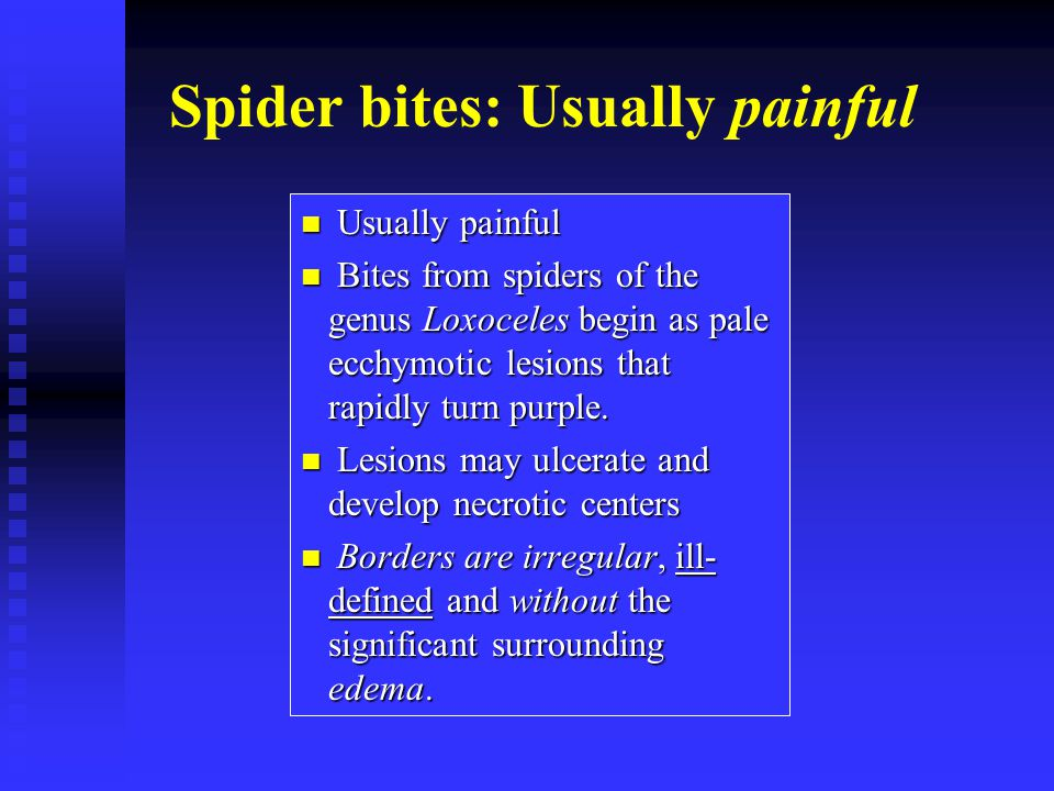 Spider bites: Usually painful Usually painful Usually painful Bites from spiders of the genus Loxoceles begin as pale ecchymotic lesions that rapidly turn purple.