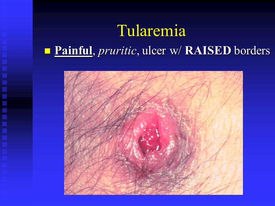 Tularemia Painful, pruritic, ulcer w/ RAISED borders Painful, pruritic, ulcer w/ RAISED borders