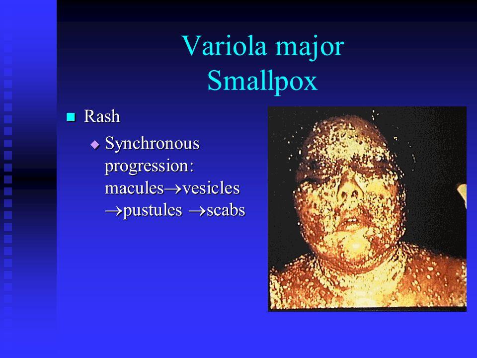 Variola major Smallpox Rash Rash  Synchronous progression: macules  vesicles  pustules  scabs