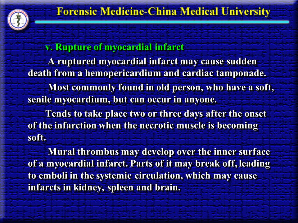 v. Rupture of myocardial infarct v.