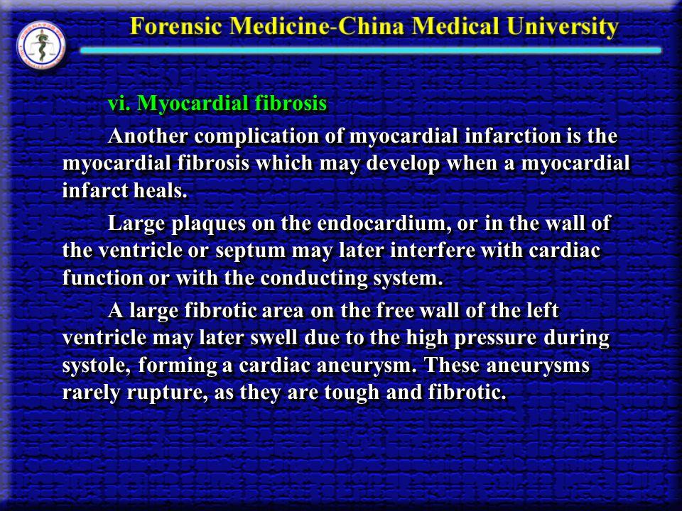vi. Myocardial fibrosis vi.