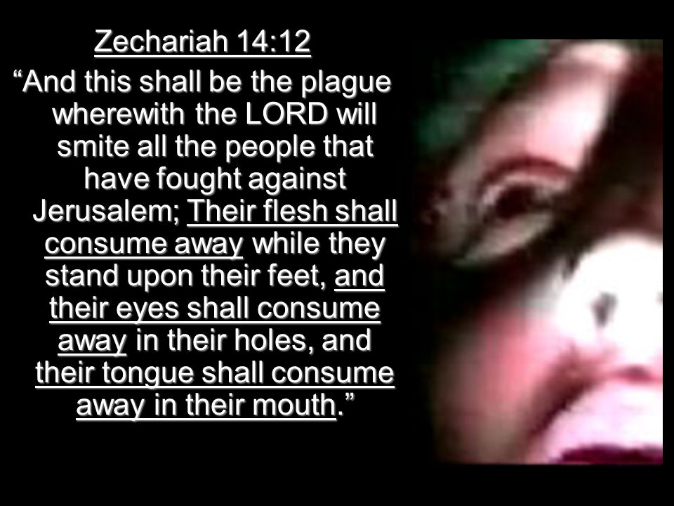 Zechariah 14:12 And this shall be the plague wherewith the LORD will smite all the people that have fought against Jerusalem; Their flesh shall consume away while they stand upon their feet, and their eyes shall consume away in their holes, and their tongue shall consume away in their mouth.