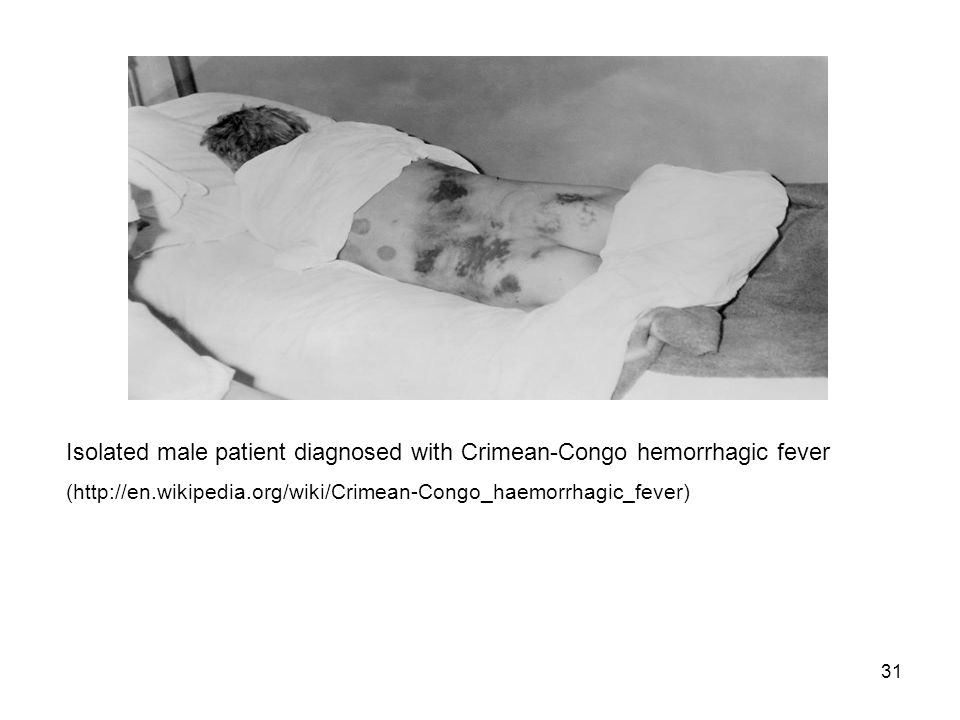 31 Isolated male patient diagnosed with Crimean-Congo hemorrhagic fever (http://en.wikipedia.org/wiki/Crimean-Congo_haemorrhagic_fever)
