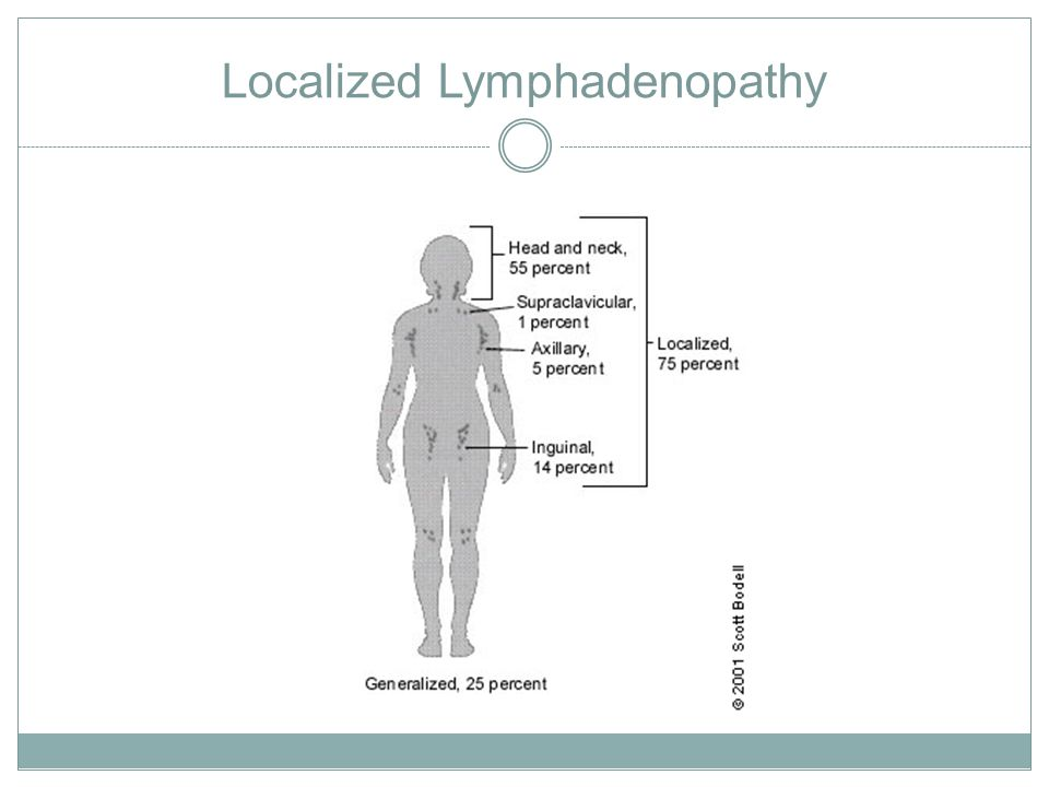Localized Lymphadenopathy