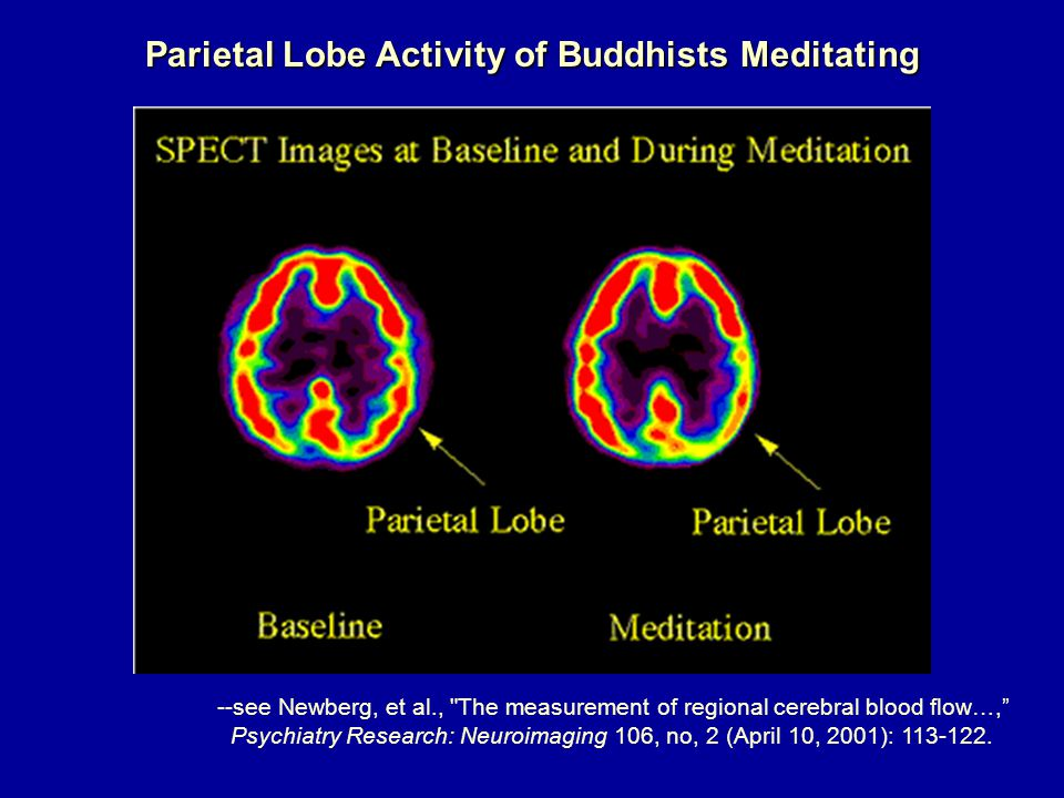 Parietal Lobe Activity of Buddhists Meditating --see Newberg, et al., The measurement of regional cerebral blood flow…, Psychiatry Research: Neuroimaging 106, no, 2 (April 10, 2001): 113-122.