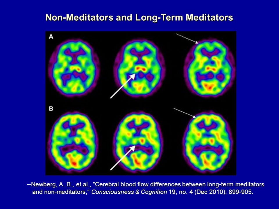 Non-Meditators and Long-Term Meditators --Newberg, A.