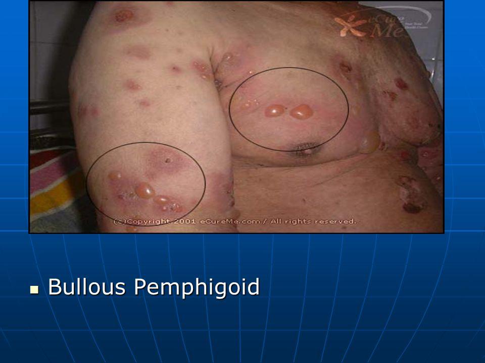 Bullous Pemphigoid Bullous Pemphigoid