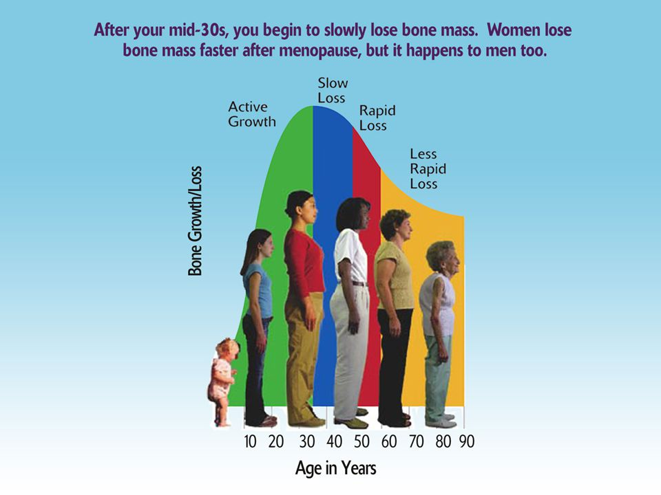 OSTEOPOROTIC BONE The loss of living bone tissue makes bones fragile and more likely to fracture.