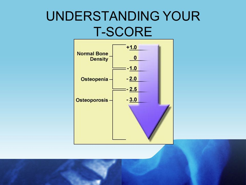 Dual-Energy X-Ray Absorptiometry Gold Standard test to determine a diagnosis Measures hip & spine Painless, safe and requires no injections Takes 5-10 minutes Determines risk for fracture