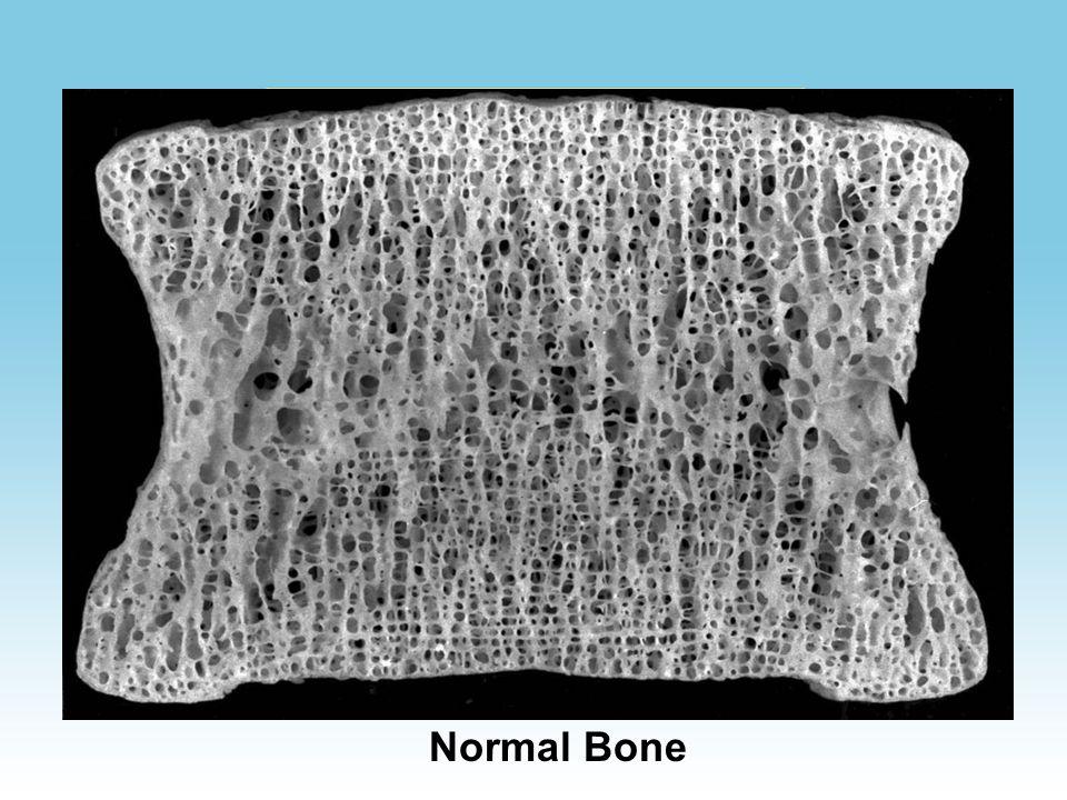 WHAT IS OSTEOPOROSIS ? Osteo = bone Porosis = full of holes Osteoporosis = means bones that are full of holes