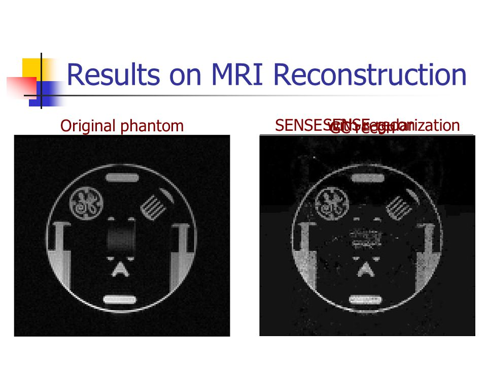SENSE recon Results on MRI Reconstruction Original phantom SENSE with regularization GC recon