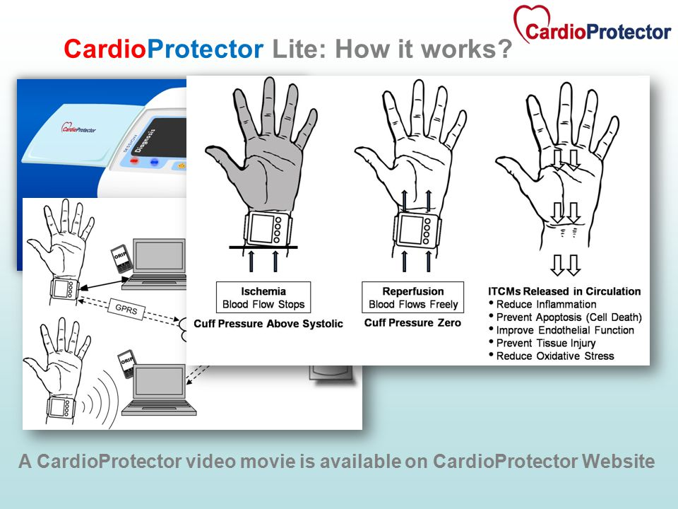 CardioProtector Lite: How it works.