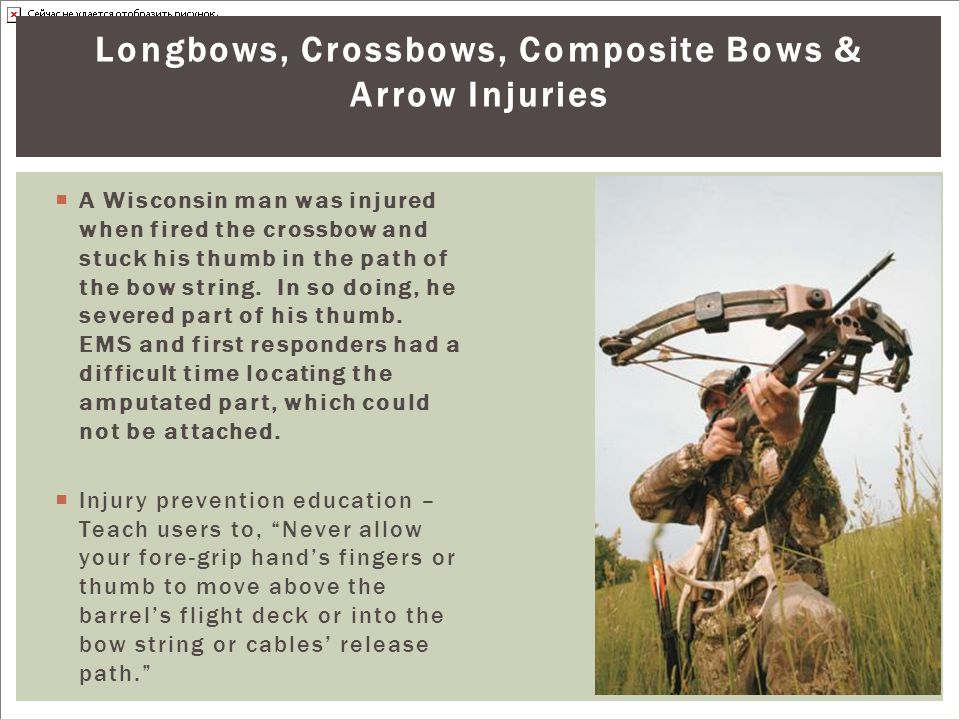 Longbows, Crossbows, Composite Bows & Arrow Injuries  A Wisconsin man was injured when fired the crossbow and stuck his thumb in the path of the bow string.