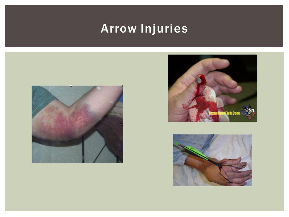 Arrow Injuries