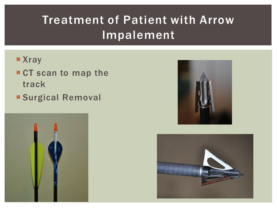 Treatment of Patient with Arrow Impalement  Xray  CT scan to map the track  Surgical Removal