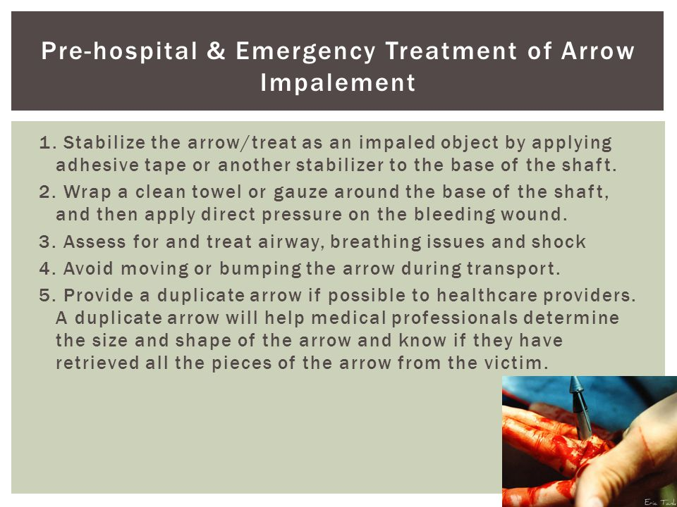 Pre-hospital & Emergency Treatment of Arrow Impalement 1. Stabilize the arrow/treat as an impaled object by applying adhesive tape or another stabiliz